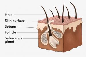 Diagram of Sebaceous Cysts